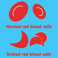 Sickle Cell Disease – Dispelling its fears and taboos – an online talk